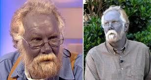 Manusia Berkulit Biru...